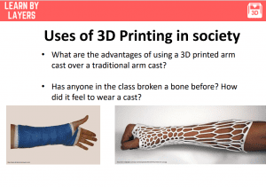 3d printed arm cast